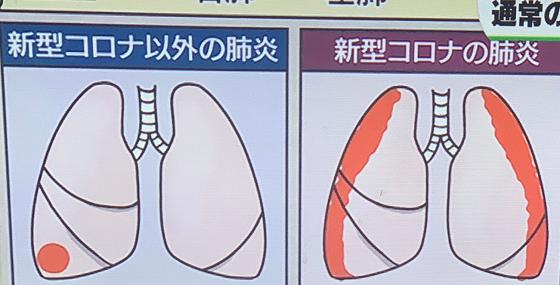 【拡散希望】新型コロナの肺炎と新型コロナ以外の肺炎の違いとは...