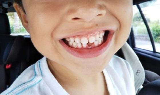 """""""歯医者さんが教える""""事故で大人の歯が抜けたり折れたりしたら〇〇に入れる?!"""