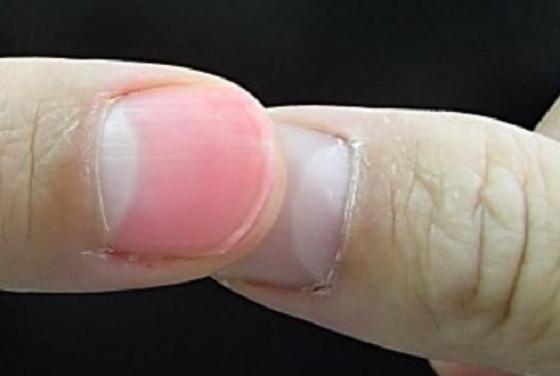 """爪を使って簡単にわかる""""脱水症状の見分け方""""で熱中症を防ごう!!"""